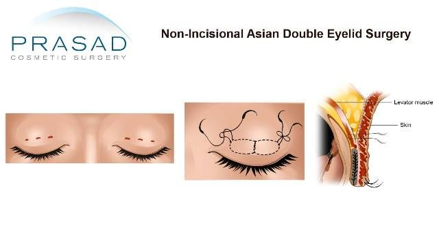 Asian Double Eyelid Surgery Non-Incisional Suture Technique