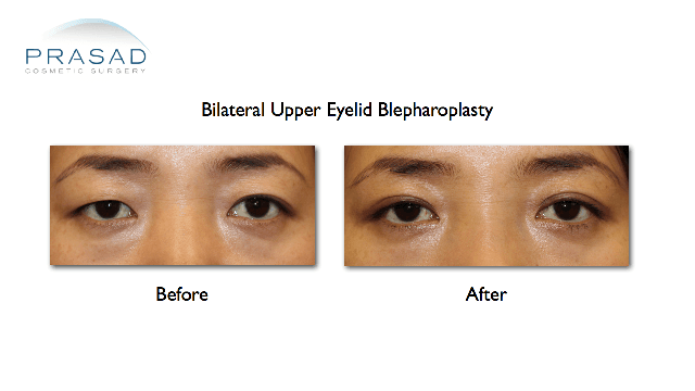 Asian eyelid surgery upper eyelid blepharoplasty before and after