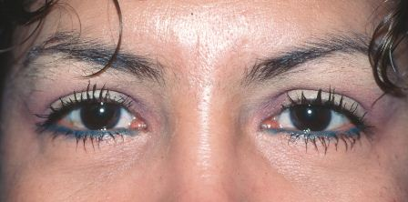 ethnic eye plastic surgery after
