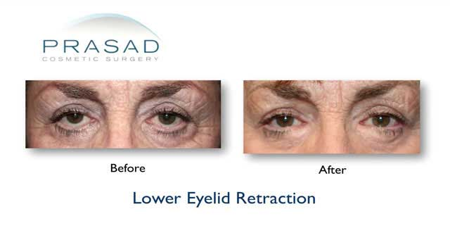eyelid surgery revision specialist