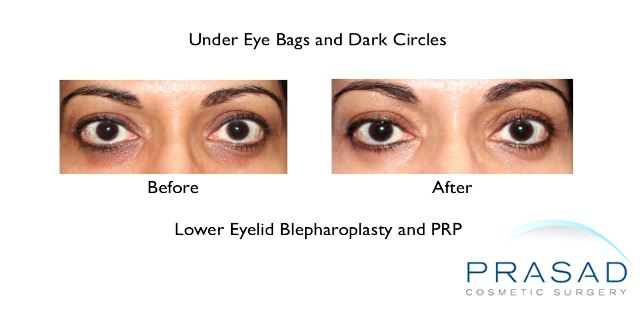 Treating skin pigmentation and thinness that cause dark circles