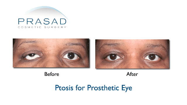 Ptosis before and afters