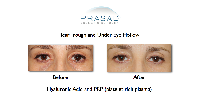 Tear trough with PRP front view