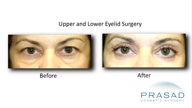 Upper and lower eyelid surgery Latina