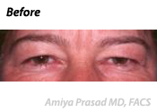 Upper Eyelid Blepharoplasty Patient Before