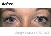 SmartLift Eyelift Patient Before