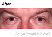 Upper and Lower Blepharoplasty Patient After