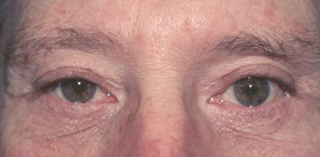 lower eyelid surgery after
