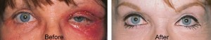 eye lift surgery complication