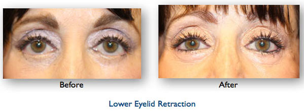 blepharoplasty complication resulting in lower eyelid retraction repaired by Dr Amiya Prasad