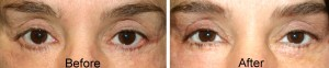 lower eyelid retraction and ectropion after eyelid surgery