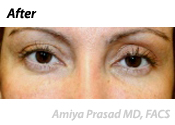 non-surgical-eyelift-after