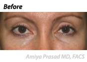 non-surgical-eyelift-before