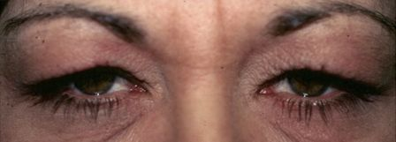 ptosis before surgery