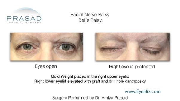 surgical correction of facial nerve palsy