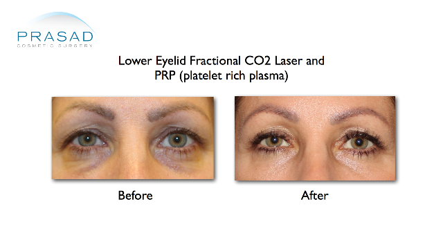 Building up thin eyelid skin due to aging