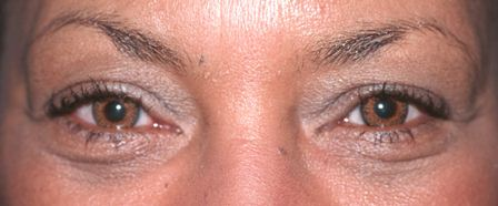 transconjunctuval blepharoplasty after
