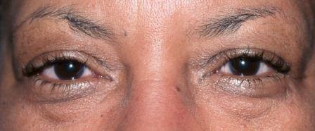 puffy lower eyelids before surgery