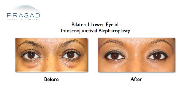 African American lower eyelid transconjunctival blepharoplasty