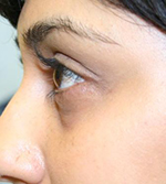 After hollow eyes treatment