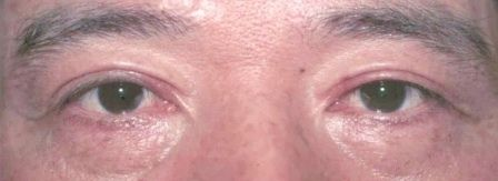 Asian double eyelid surgery nyc after