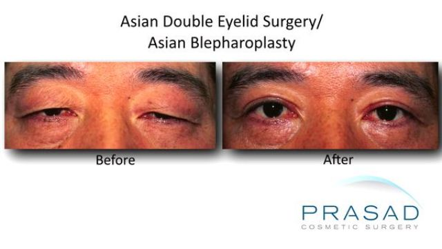 Asian Double Eyelid Surgery