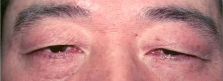 Asian double eyelid surgery nyc before