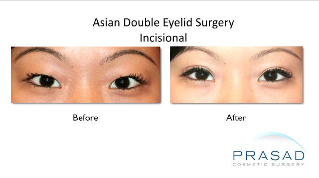 Asian Double Eyelid Surgery Before and After