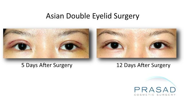 Asian Double Eyelid Surgery Healing Progression - 12 days after surgery