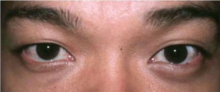 Asian male double eyelid surgery before