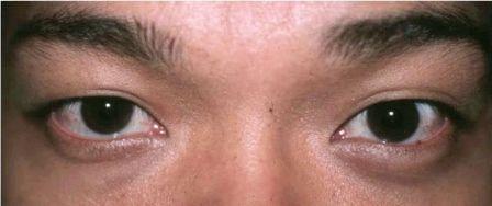 Asian eyelid surgery before