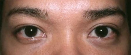 Asian male double eyelid surgery after
