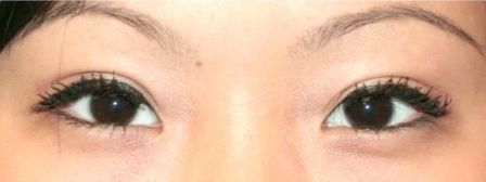 Eemale asian double eyelid surgery after