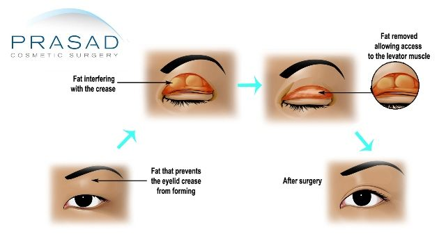 Incisional technique Asian eyelid surgery