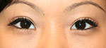 After Asian Eyelid Surgery