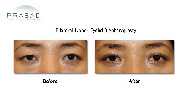 Asian eyelid surgery upper eyelid blepharoplasty before and after