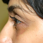 before hollow eyes treatment