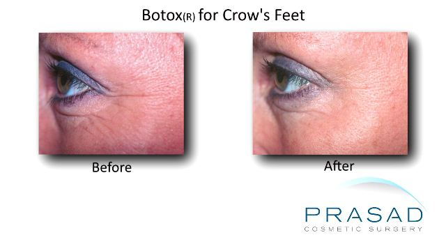 Botox before and after crow's feet left eye caucasian female