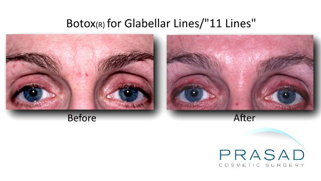 "Botox® placed in the glabellar lines, commonly referred to as the ""number 11s"" to prevent vertical creases."
