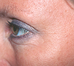 After Botox treatment for wrinkles