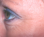 Before Botox treatment for wrinkles