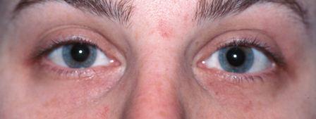 laser skin resurfacing before