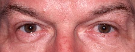 after eyelid blepharoplasty surgery