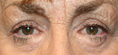 after eyelid surgery complications repair