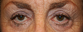 complications after eyelid surgery