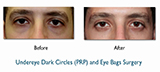 dark circles on male before and after treatment