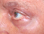 Erbium laser therapy for wrinkles, after treatment