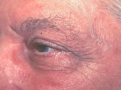 laser treatment for wrinkles before