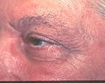 Erbium laser therapy for wrinkles, before treatment