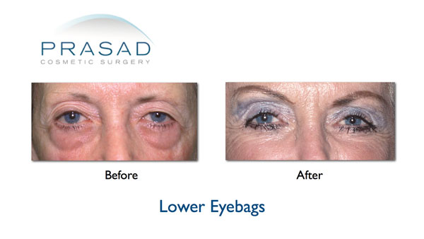 eye bags before and after